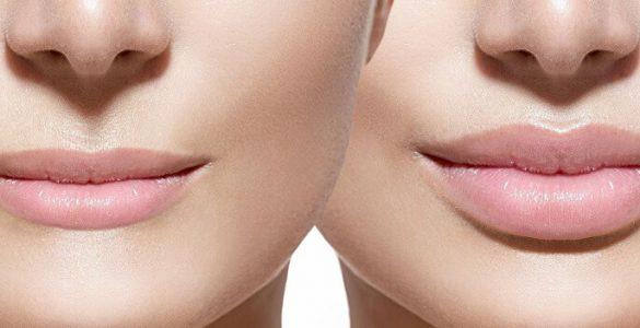Збільшення губ - модний тренд чи необхідність?