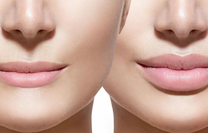 Збільшення губ