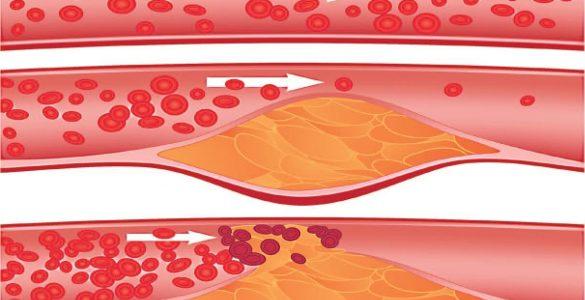 Атеросклероз: як виявити смертельно небезпечні зміни в судинах?