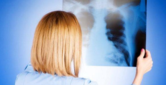5 кращих продуктів для очищення легенів від пневмонії