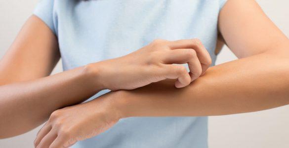 Названо продукти, які можуть спровокувати проблеми зі шкірою