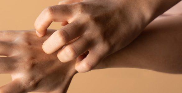 Лікарі пояснили, що допоможе позбутися неприємного стану шкіри