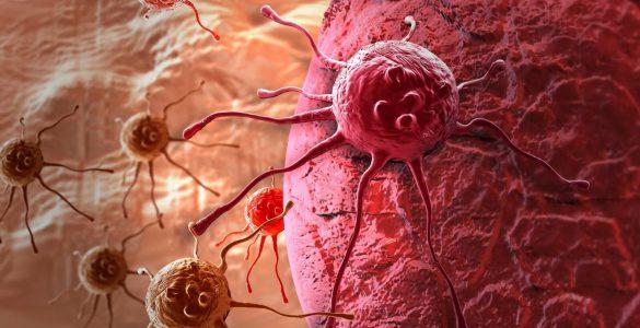 13 ранніх симптомів раку, які жінки пропускають найбільш часто