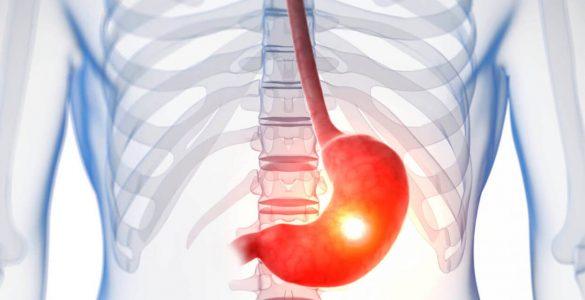 Лікарі назвали перші ознаки виразки шлунка