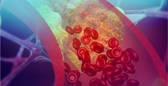 Лікарі назвали дві зовнішні ознаки високого рівня холестерину в крові