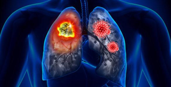 Названі способи відновлення легенів після коронавірусу