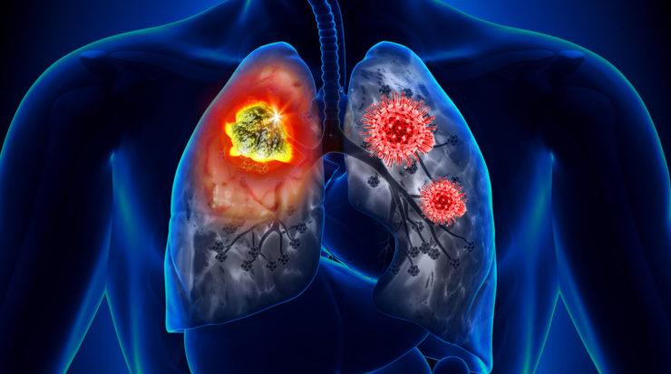 Легені після covid