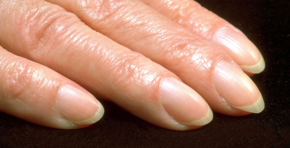 Проблему з пальцями назвали ознакою злоякісної пухлини
