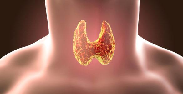 Названі перші симптоми пухлини щитовидної залози