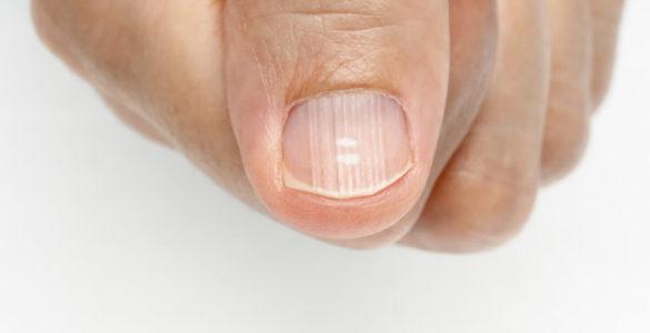 Плями на нігтях можуть розповісти про проблеми зі здоров'ям