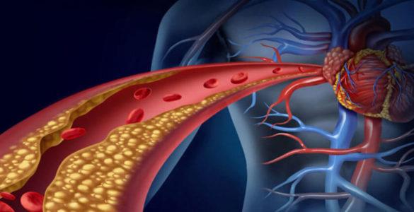 Високий холестерин: небезпечний симптом назвали вчені
