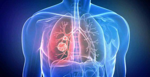 Названо ранній симптом раку легенів, який багато людей ігнорують