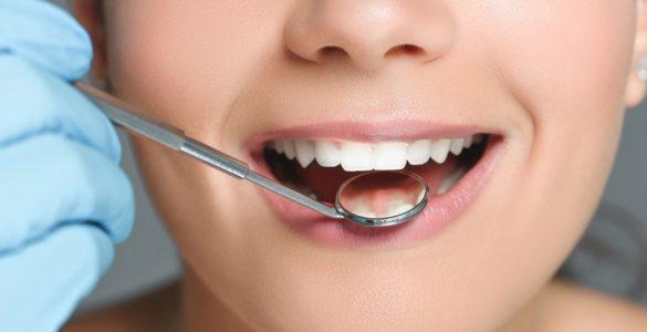 6 серйозних хвороб, які стоматолог помітить першим