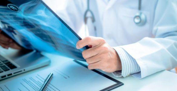 Розпізнати рак легенів допоможуть основні попереджувальні ознаки