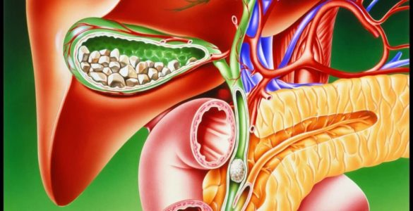 5 ранніх ознак захворювання жовчного міхура, які не можна пропустити