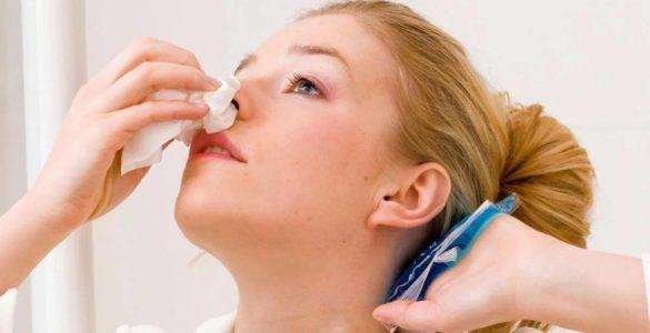 Лікарі пояснили, що робити при раптовій кровотечі з носа
