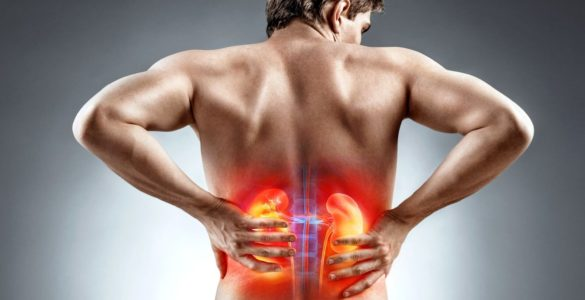 Стало відомо, коли біль в спині говорить про хвороби нирок