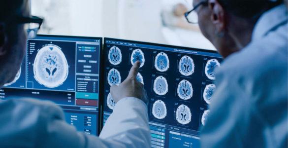 Онколог назвав вік для обов'язкового обстеження на рак