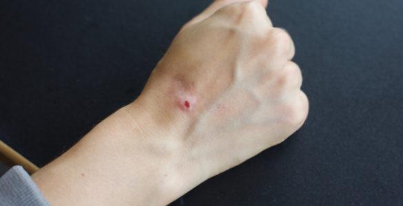 Названий симптом базальноклітинного раку шкіри, який легко пропустити