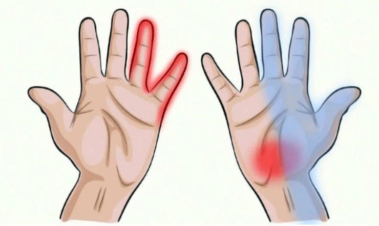 Оніміння рук