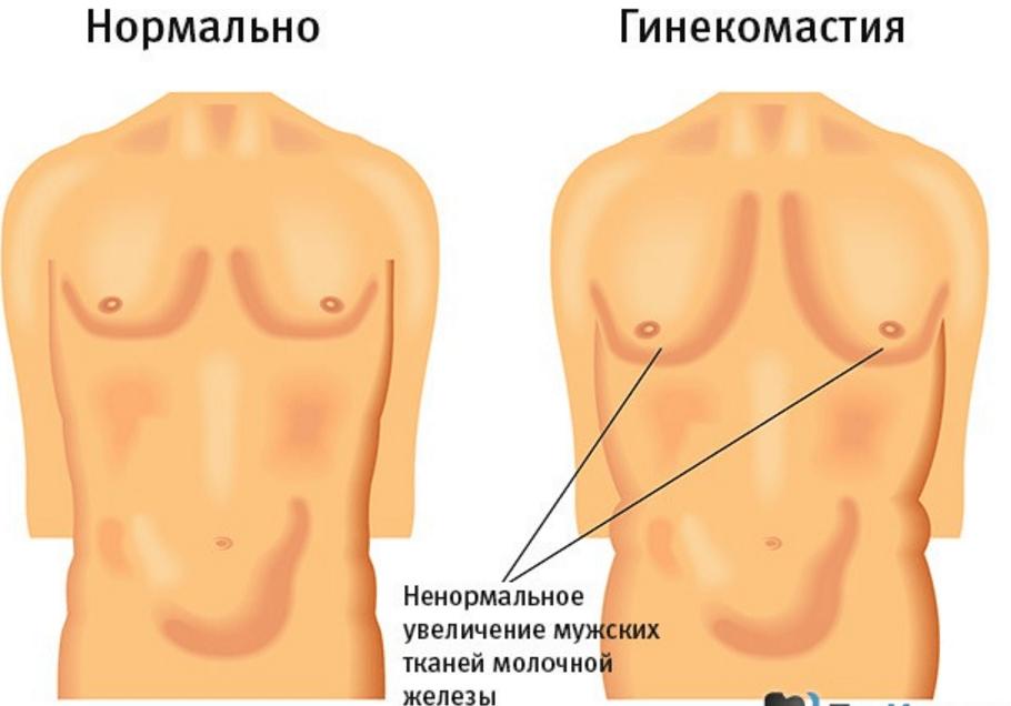 жирова тканина на груді у чоловіка