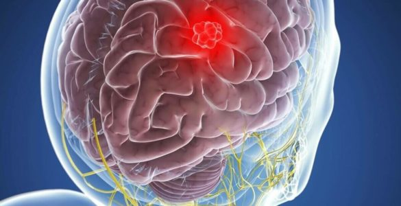 Вчені розповіли про чотири симптоми, які вказують на пухлину мозку
