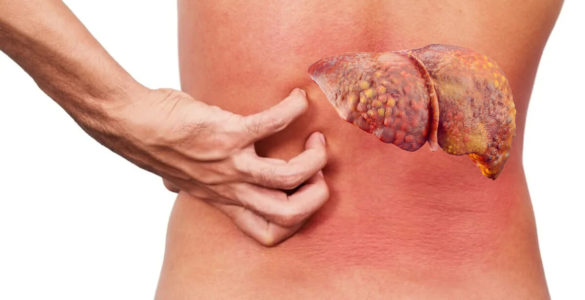 """Жирова хвороба печінки: перші """"тихі"""" зміни в організмі назвали лікарі"""