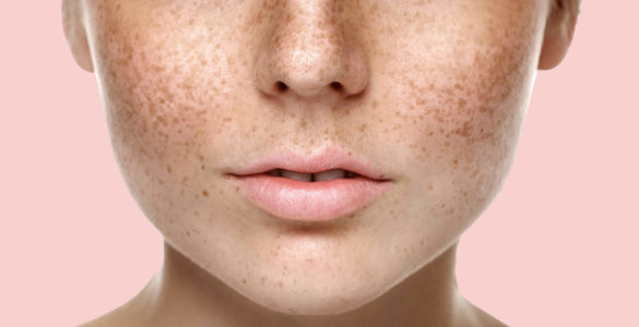 Темні плями на певних ділянках шкіри названі ознакою діабету