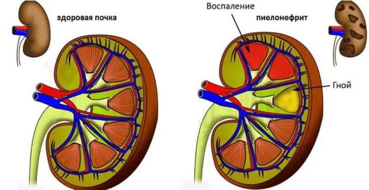 Пієлонефрит