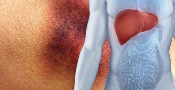 Жирова хвороба печінки: незвичайний колір шкіри вкаже на стан