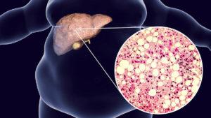 неалкогольна жирова хвороба печінки