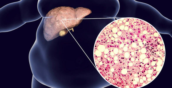 Симптоми жирової хвороби печінки: як виявити хворобу за станом порожнини рота