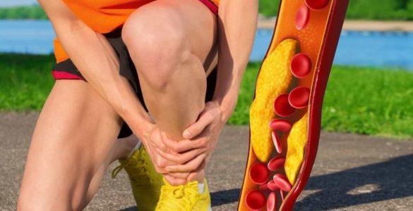 Високий холестерин: симптом на ногах вкаже на небезпечний стан